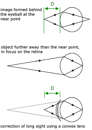 The Eye Geometrical Optics From A Level Physics Tutor
